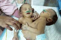 Влошава се състоянието на сиамските близнаци от Сливен