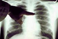Безплатни прегледи за туберкулоза в сливенската болница