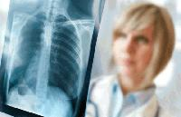 Безплатни прегледи за туберкулоза в областната болница в Сливен