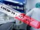 16 нови случаи на коронавирус в България