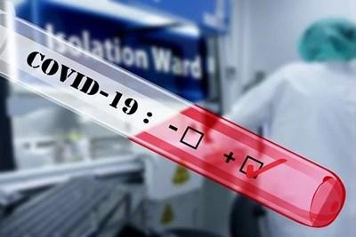 Към днешния ден за денонощието има 16 новооткрити случая на Covid-19 от изследвани 496 проби, в болница са приети шест души, съобщи днес на редовния си...