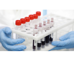 298 положителни за коронавирус при 4900 проби