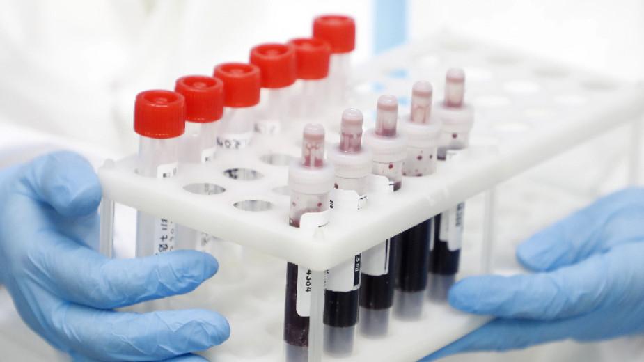 298 нови случая на заразени с COVID-19 през последното денонощие, при направени близо 4900 проби. Това показват данните на Единния информационен портал.Така...