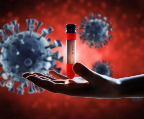 75 нови случаи на коронавирус от направени 1975 теста
