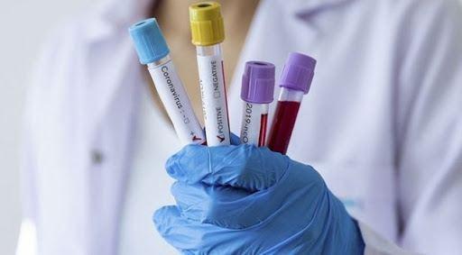 Общо 15 899 теста за COVID-19 са направени в лабораториите у нас от началото на дейността им до днес. Първите тестове започнаха да се извършват в Националната...