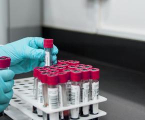 Още не са ясни резултатите от пробите за заразата в Хаджидимитрово